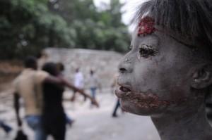 32 An injured person is seen in the street after an earthquake hit Port-au-Prince, Haiti, Tuesday, Jan. 12, 2010. (AP Photo/Jorge Cruz) #